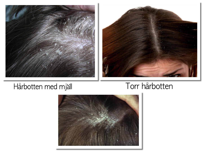 ont i hårbotten